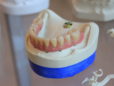 Partial_Dentures